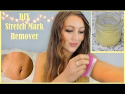DIY Stretch Mark Home Remedy