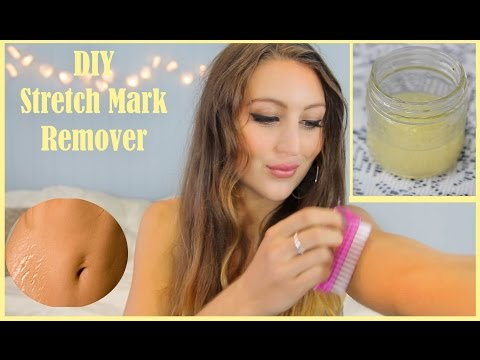 DIY Stretch Mark Home Remedy
